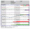 Hourly Weather Forecast Graphs
